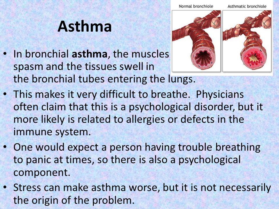 Asthma In bronchial asthma, the muscles spasm and the tissues swell in the bronchial tubes entering the lungs.