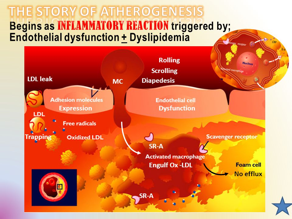 Begins as INFLAMMATORY REACTION triggered by; Endothelial dysfunction + Dyslipidemia MC Dysfunction Rolling Scrolling Diapedesis Expression LDL leak Trapping SR-A Engulf Ox -LDL No efflux