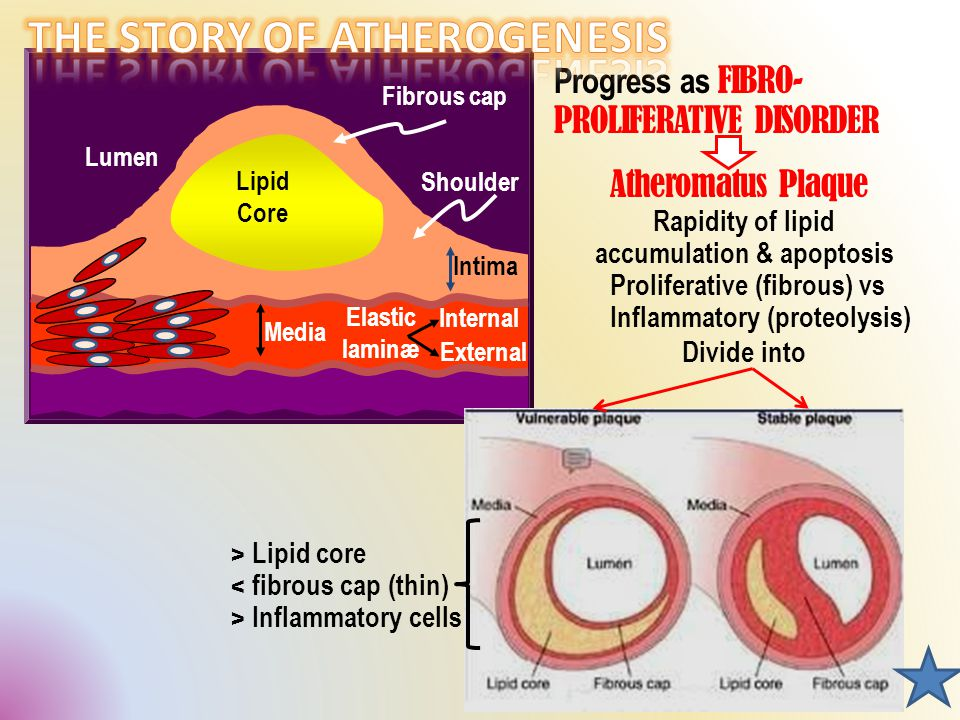Progress as FIBRO- PROLIFERATIVE DISORDER Lumen Lipid Core Fibrous cap Shoulder Intima Media Elastic laminæ Internal External Rapidity of lipid accumulation & apoptosis Proliferative (fibrous) vs Inflammatory (proteolysis) Atheromatus Plaque Divide into > Lipid core < fibrous cap (thin) > Inflammatory cells