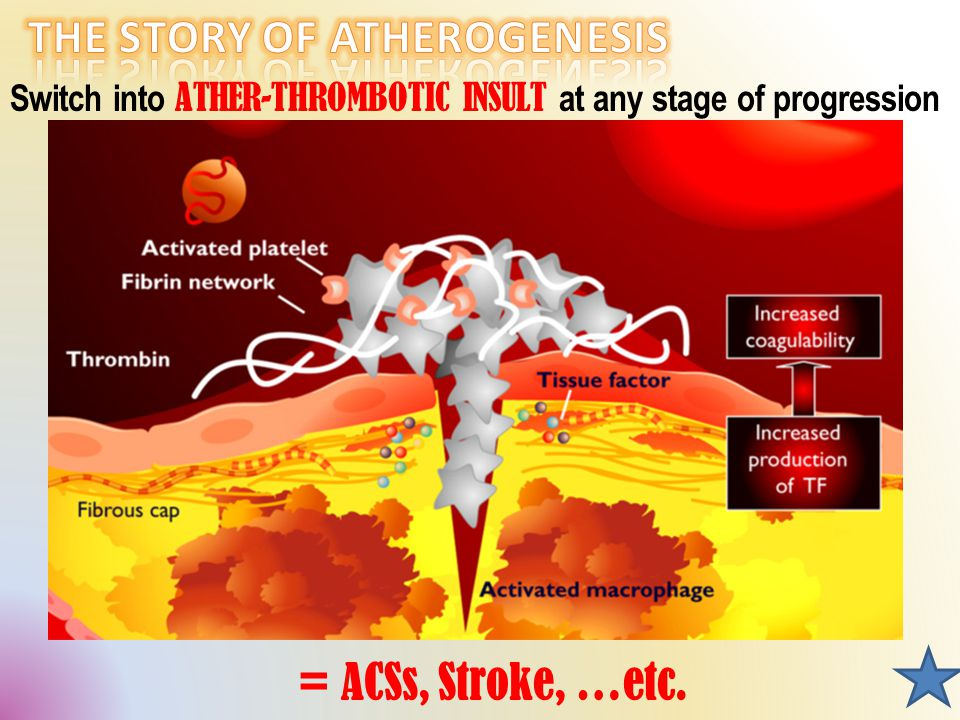 Switch into ATHER-THROMBOTIC INSULT at any stage of progression = ACSs, Stroke, …etc.