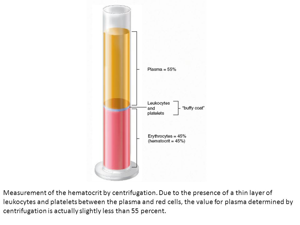 Measurement of the hematocrit by centrifugation. Due to the presence of a thin layer of leukocytes and platelets between the plasma and red cells, the