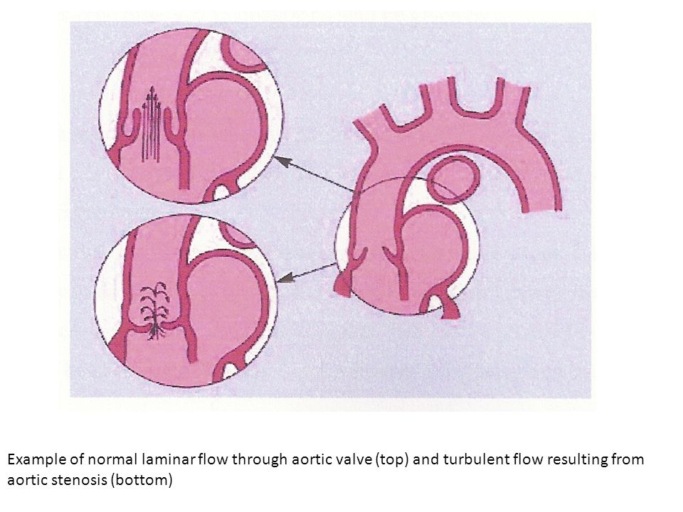 Example of normal laminar flow through aortic valve (top) and turbulent flow resulting from aortic stenosis (bottom)