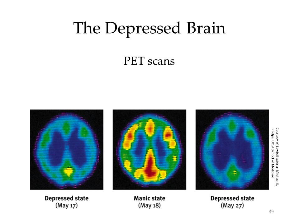 39 The Depressed Brain PET scans Courtesy of Lewis Baxter an Michael E. Phelps, UCLA School of Medicine
