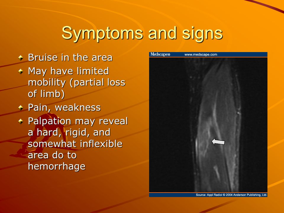 Symptoms and signs Bruise in the area May have limited mobility (partial loss of limb) Pain, weakness Palpation may reveal a hard, rigid, and somewhat inflexible area do to hemorrhage