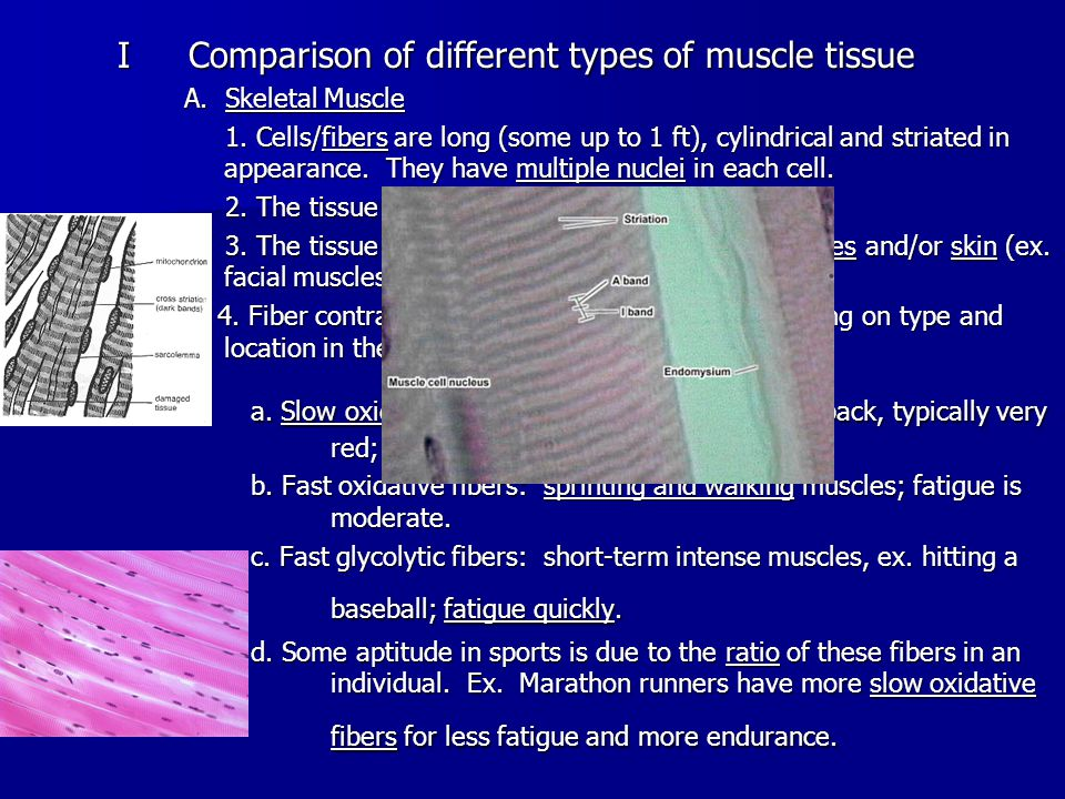 IComparison of different types of muscle tissue A.