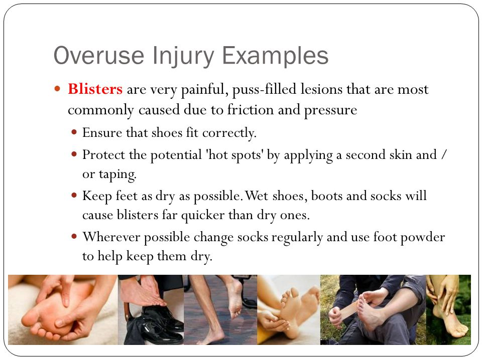 Overuse Injury Examples Blisters are very painful, puss-filled lesions that are most commonly caused due to friction and pressure Ensure that shoes fi