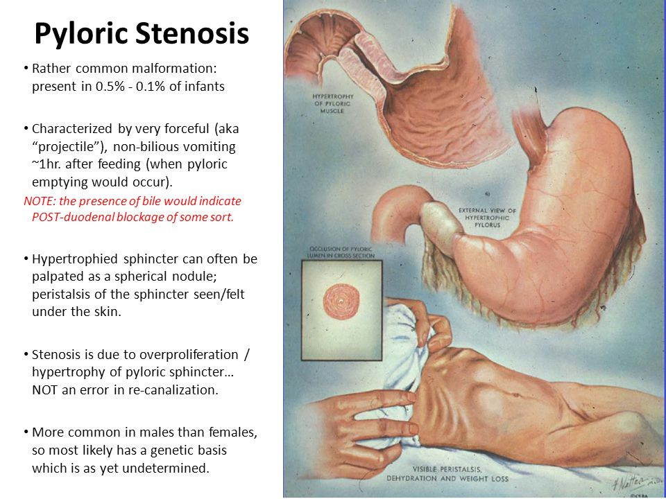 "Pyloric Stenosis Rather common malformation: present in 0.5% - 0.1% of infants Characterized by very forceful (aka ""projectile""), non-bilious vomiting"