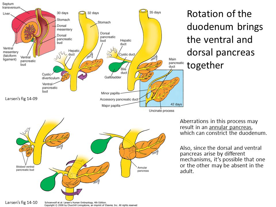 Rotation of the duodenum brings the ventral and dorsal pancreas together Aberrations in this process may result in an annular pancreas, which can cons