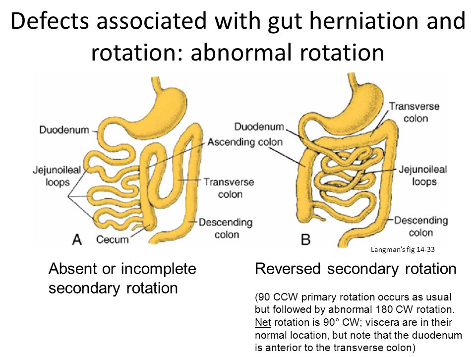 Defects associated with gut herniation and rotation: abnormal rotation Absent or incomplete secondary rotation Reversed secondary rotation (90 CCW pri
