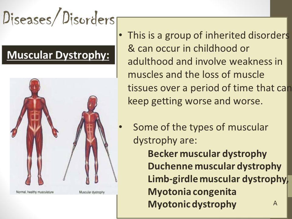 Diseases/Disorders This is a group of inherited disorders & can occur in childhood or adulthood and involve weakness in muscles and the loss of muscle tissues over a period of time that can keep getting worse and worse.
