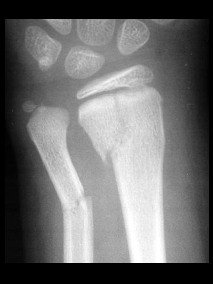 Bone Trauma Epiphyseal Growth Plate Injuries –complications Apophyseal Injuries –Sever's syndrome –Osgood- Schlatter's syndrome