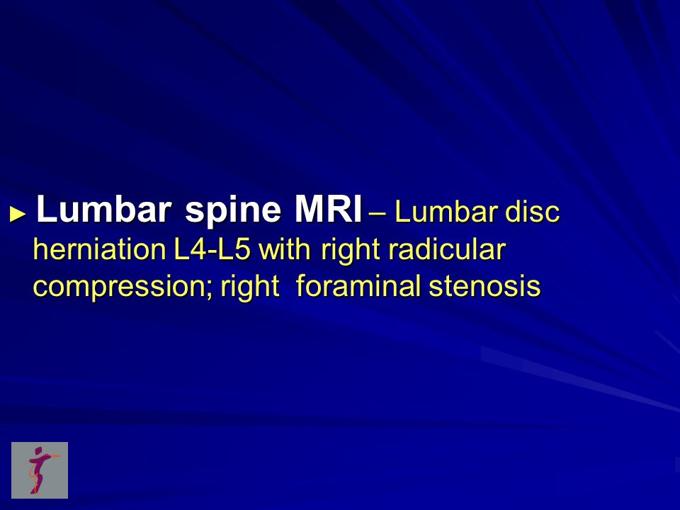 ► Lumbar spine MRI – Lumbar disc herniation L4-L5 with right radicular compression; right foraminal stenosis