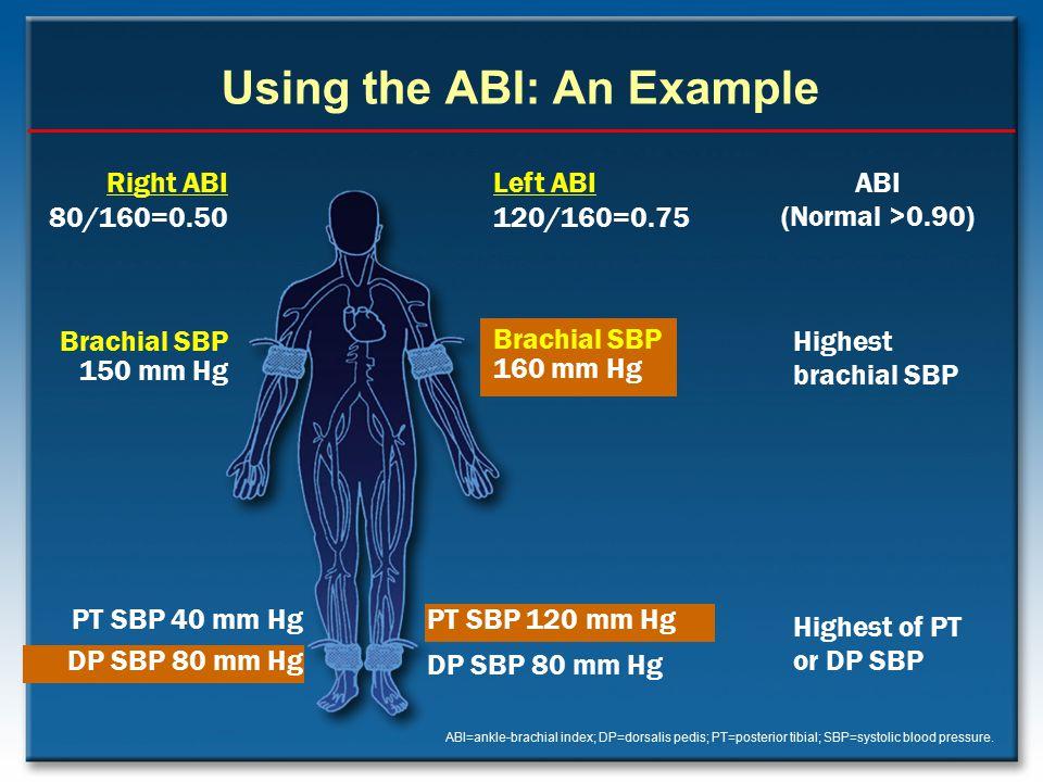 Using the ABI: An Example ABI=ankle-brachial index; DP=dorsalis pedis; PT=posterior tibial; SBP=systolic blood pressure. Right ABI 80/160=0.50 Brachia