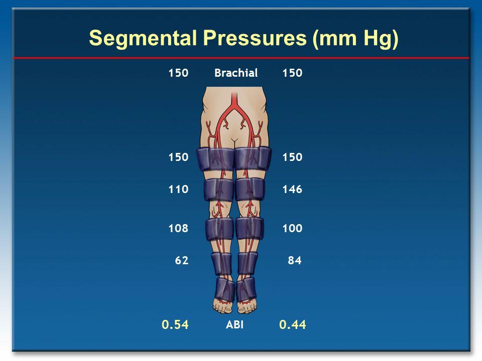 Segmental Pressures (mm Hg) 150 110 108 62 0.54 150 146 100 84 0.44 ABI 150 Brachial