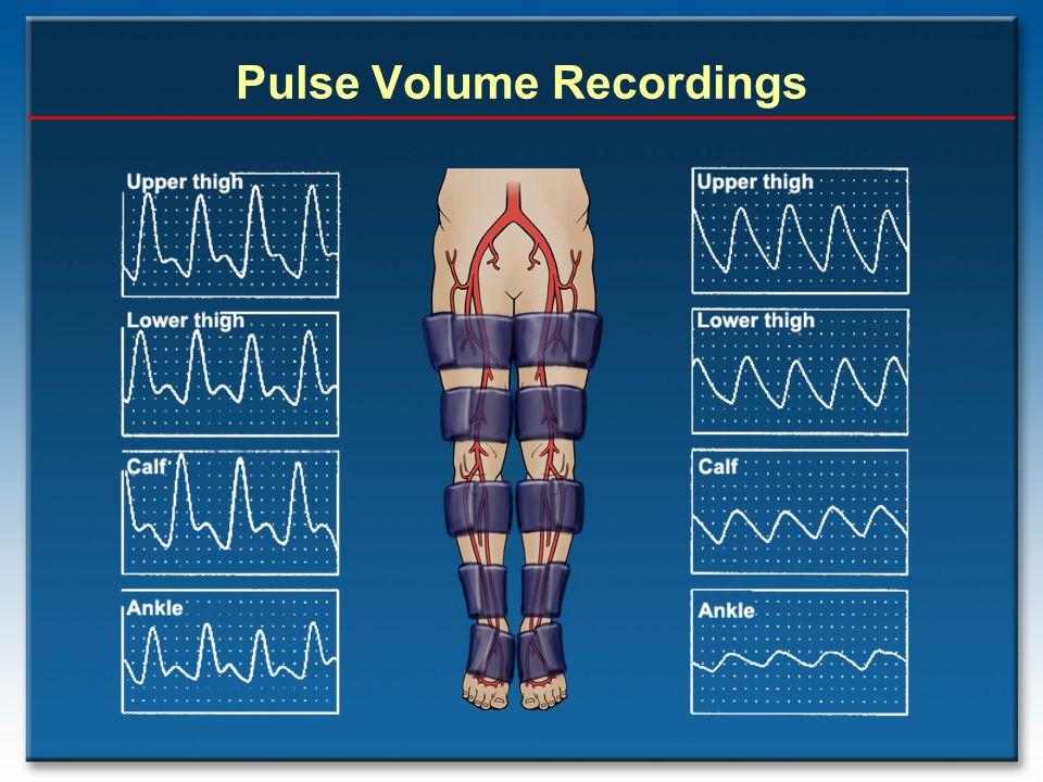 Pulse Volume Recordings