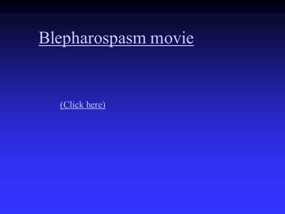 Blepharospasm movie (Click here)