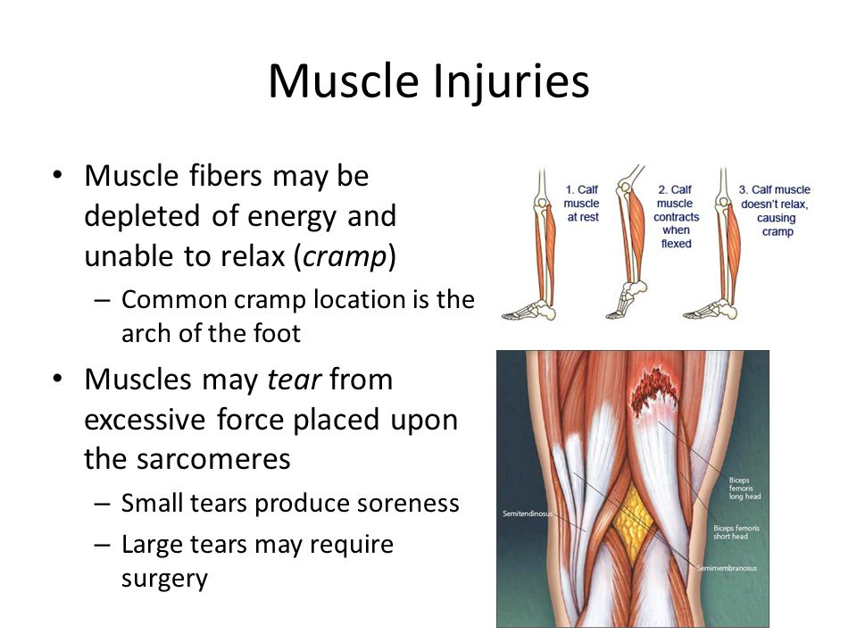 Muscle Injuries Muscle fibers may be depleted of energy and unable to relax (cramp) – Common cramp location is the arch of the foot Muscles may tear from excessive force placed upon the sarcomeres – Small tears produce soreness – Large tears may require surgery