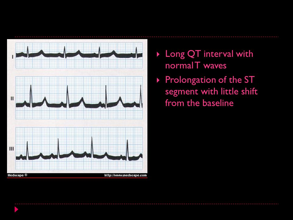  Long QT interval with normal T waves  Prolongation of the ST segment with little shift from the baseline