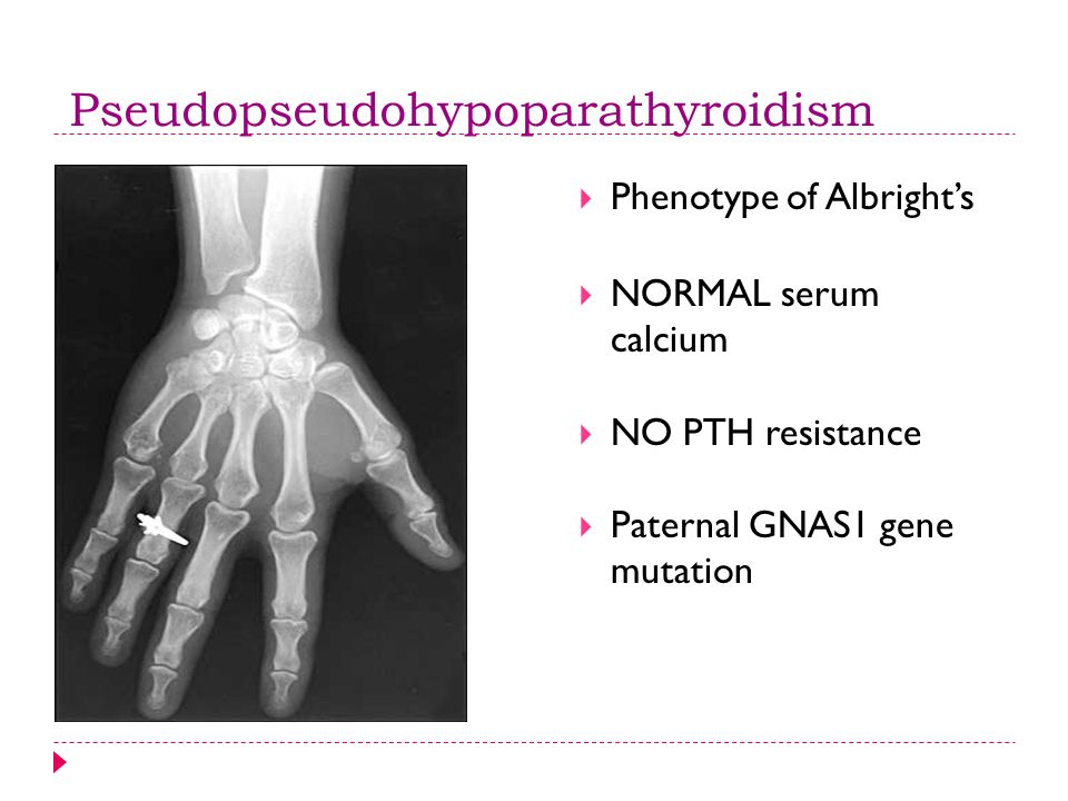 Pseudopseudohypoparathyroidism  Phenotype of Albright's  NORMAL serum calcium  NO PTH resistance  Paternal GNAS1 gene mutation