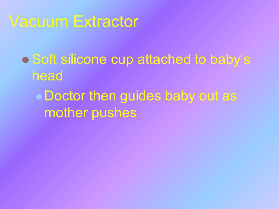 Vacuum Extractor Soft silicone cup attached to baby's head Doctor then guides baby out as mother pushes