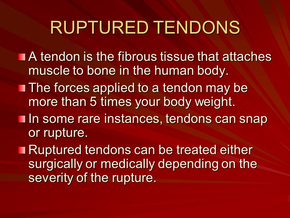 RUPTURED TENDONS A tendon is the fibrous tissue that attaches muscle to bone in the human body. The forces applied to a tendon may be more than 5 time