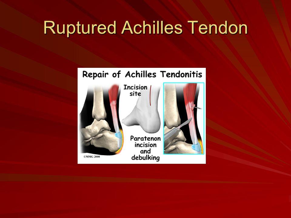 Ruptured Achilles Tendon