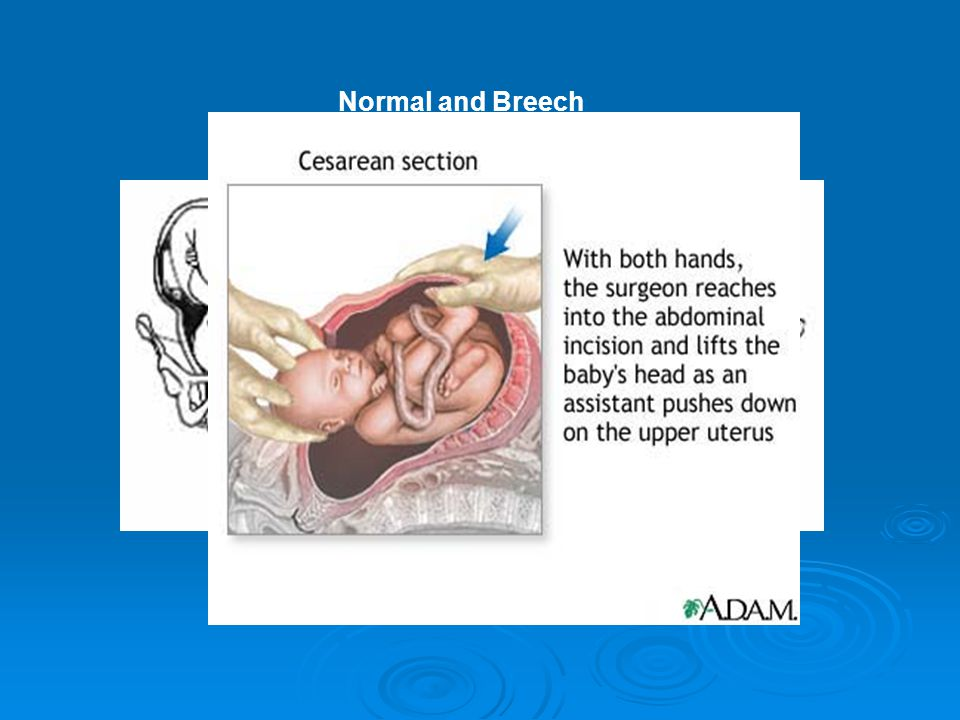 Normal and Breech Presentation of Baby