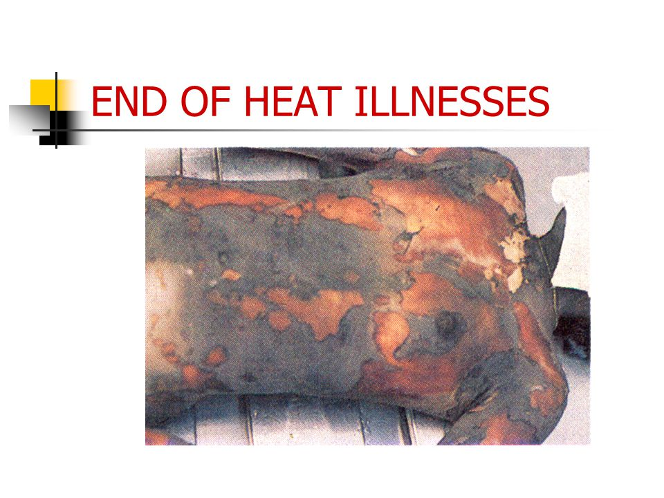 END OF HEAT ILLNESSES