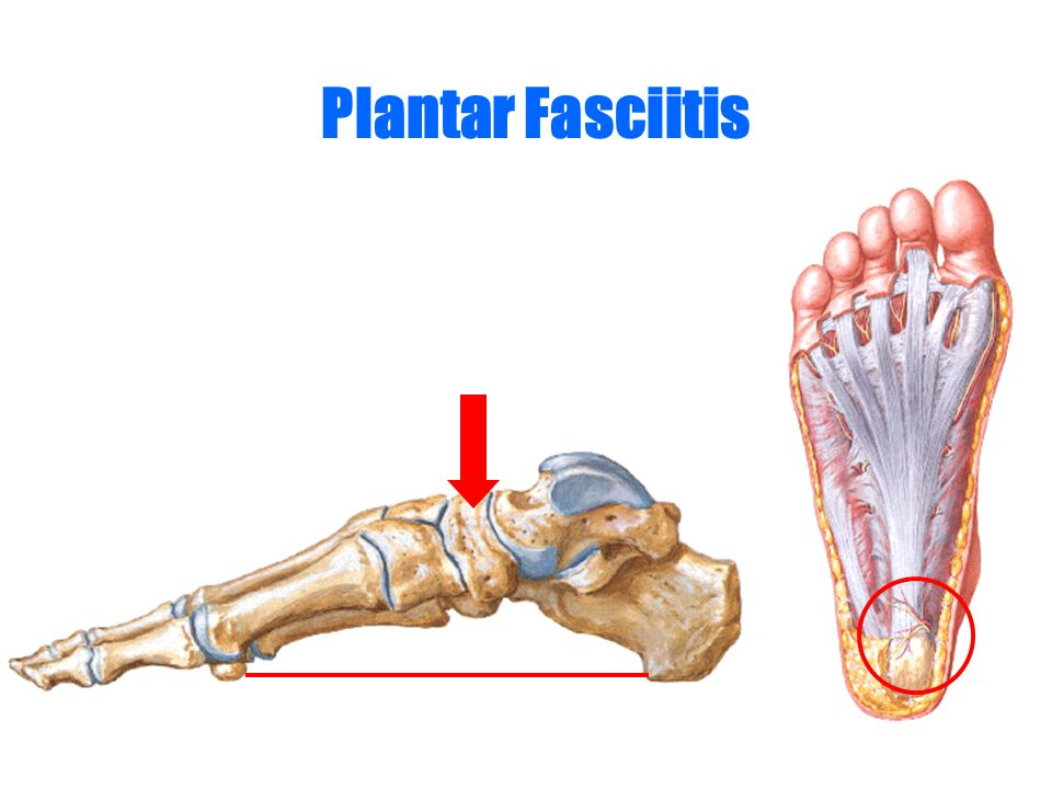 Plantar Fasciitis Heel pain Loading exceeding the flexibility of plantar fascia – Overweight – Increase pronation
