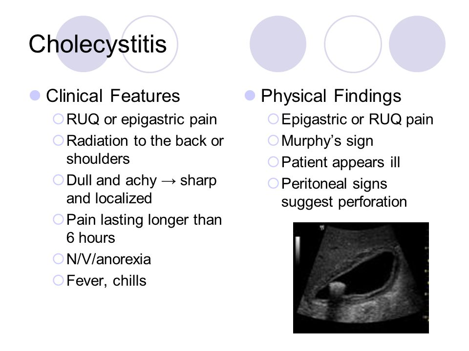 Cholecystitis Clinical Features  RUQ or epigastric pain  Radiation to the back or shoulders  Dull and achy → sharp and localized  Pain lasting lon