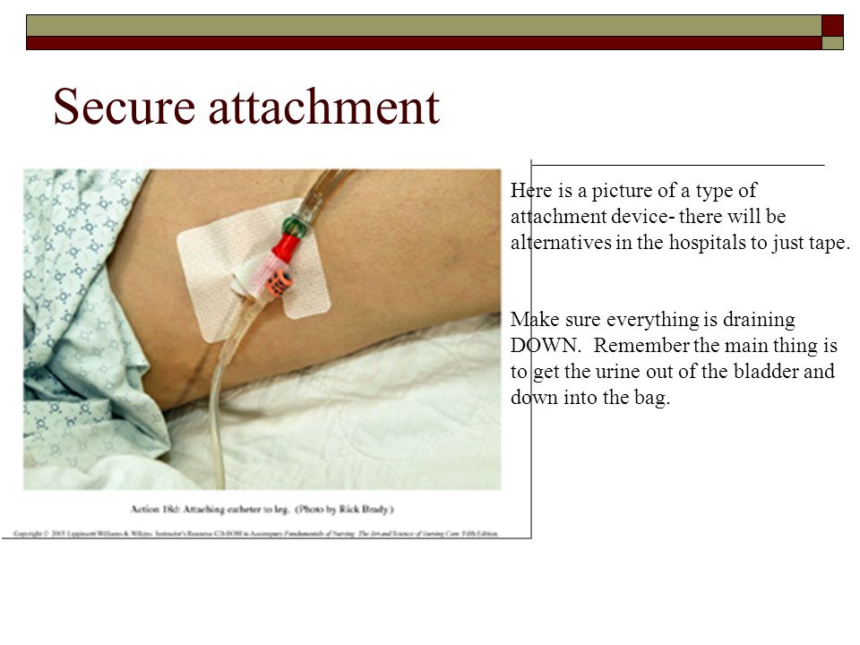 Secure attachment Here is a picture of a type of attachment device- there will be alternatives in the hospitals to just tape.