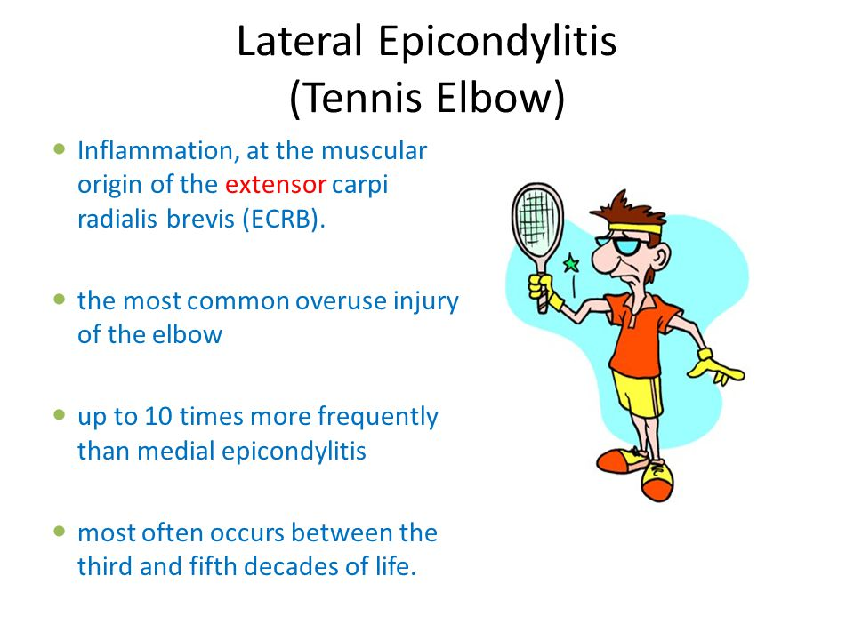 Lateral Epicondylitis (Tennis Elbow) Inflammation, at the muscular origin of the extensor carpi radialis brevis (ECRB). the most common overuse injury