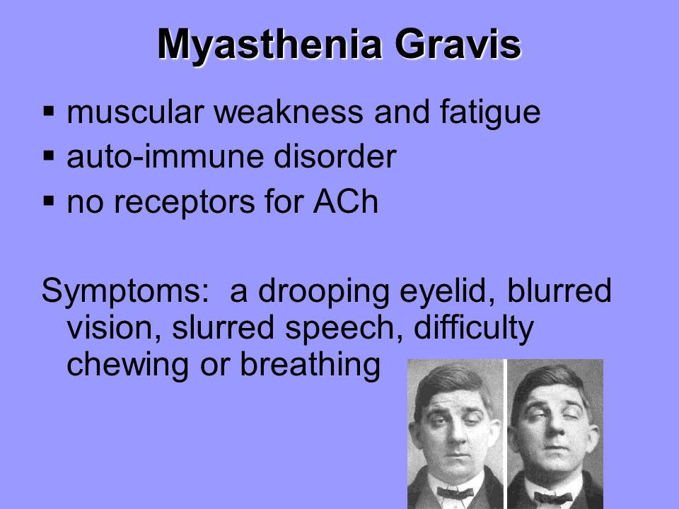 Myasthenia Gravis  muscular weakness and fatigue  auto-immune disorder  no receptors for ACh Symptoms: a drooping eyelid, blurred vision, slurred s