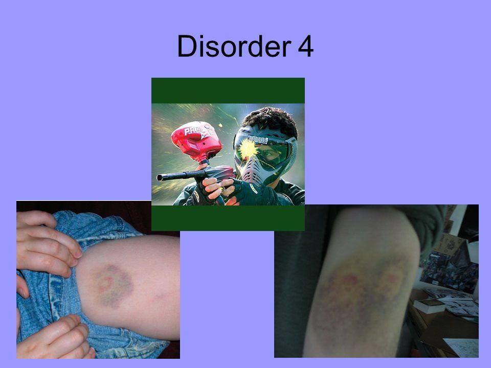 Disorder 4