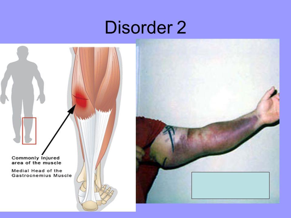 Disorder 2