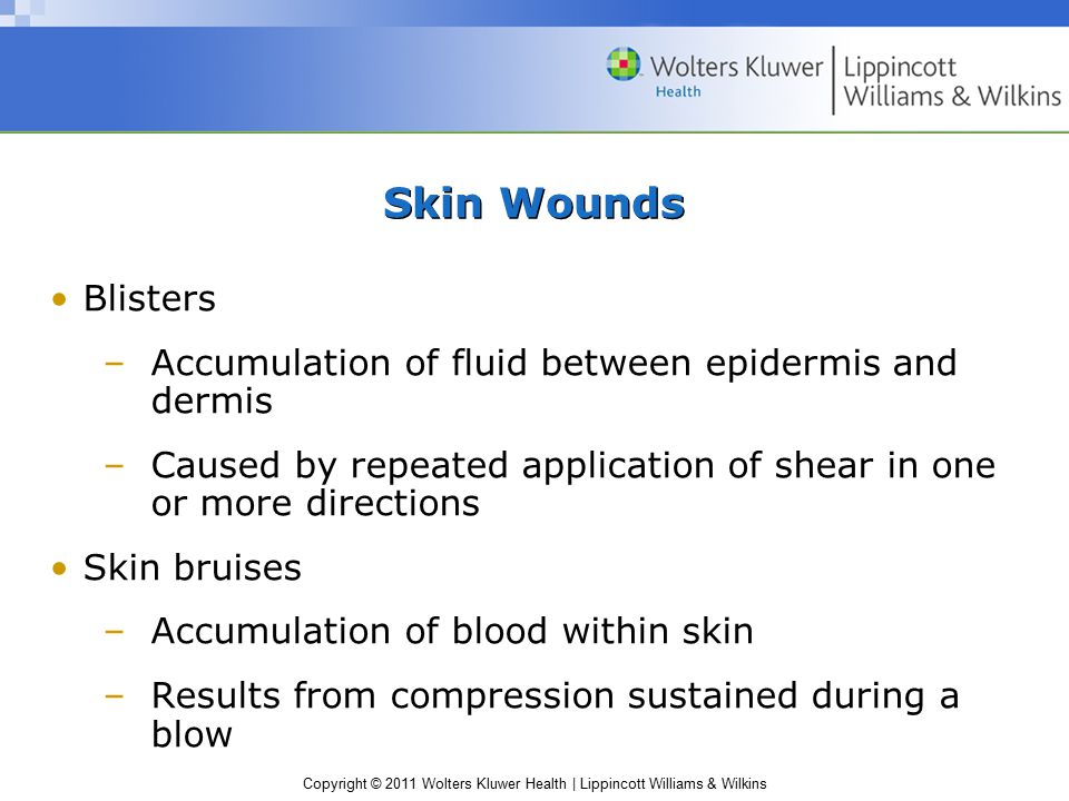Copyright © 2011 Wolters Kluwer Health | Lippincott Williams & Wilkins Skin Wounds Blisters –Accumulation of fluid between epidermis and dermis –Cause