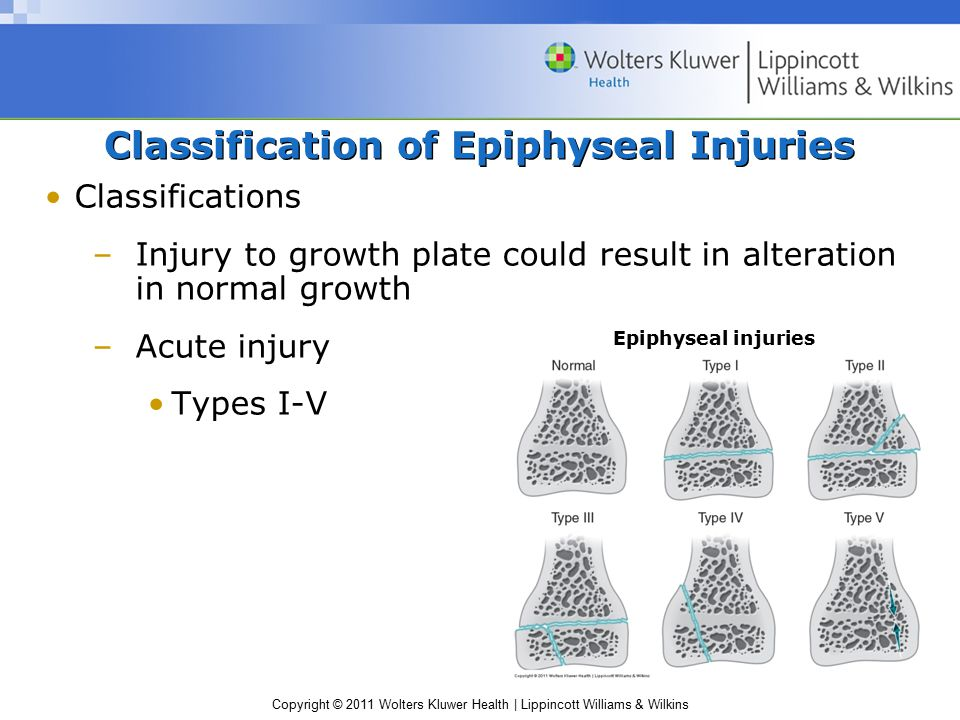 Copyright © 2011 Wolters Kluwer Health | Lippincott Williams & Wilkins Classification of Epiphyseal Injuries Classifications –Injury to growth plate c