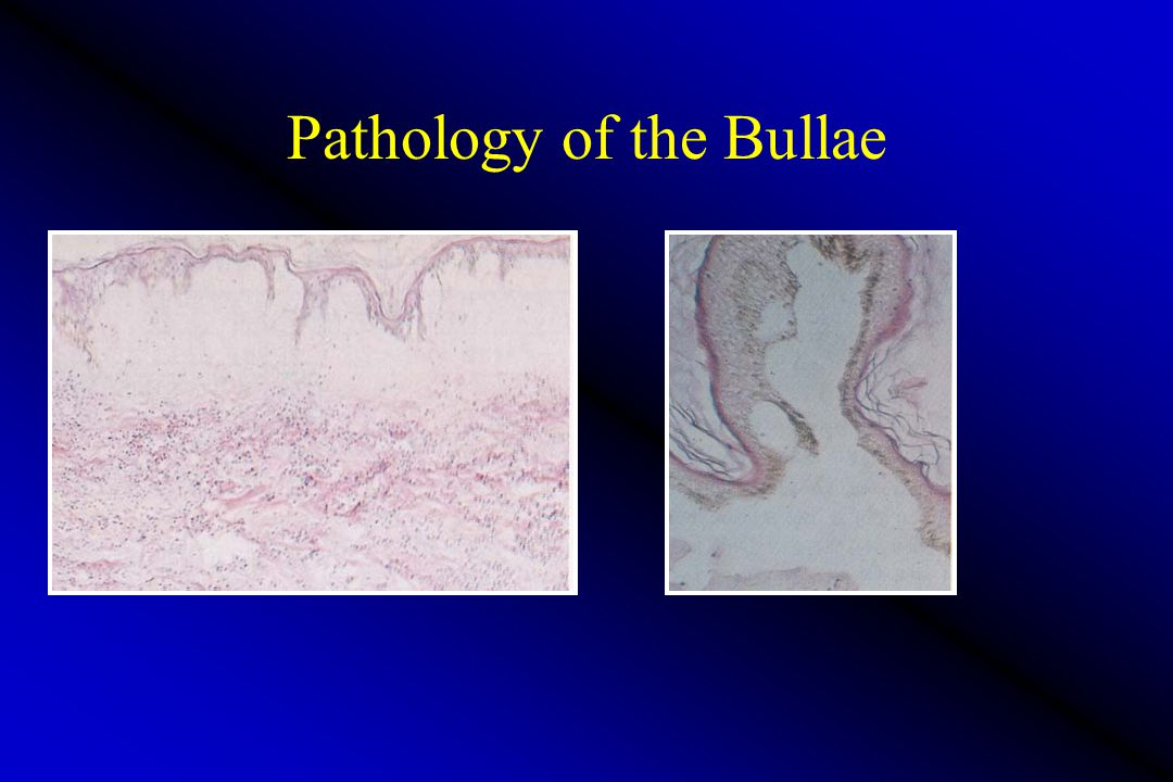 Pathology of the Bullae