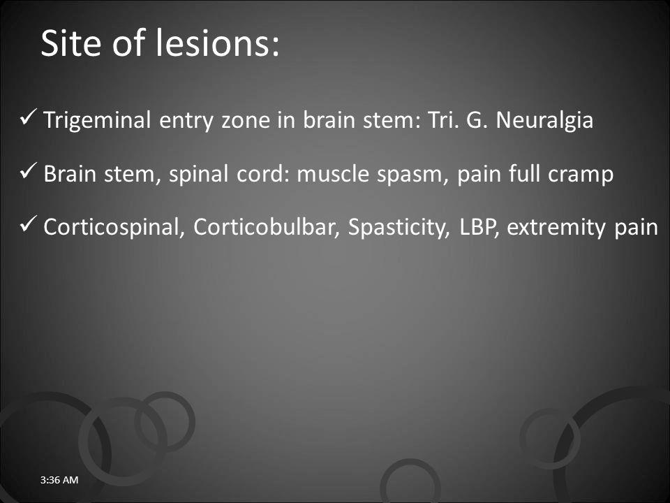 Site of lesions: Trigeminal entry zone in brain stem: Tri.
