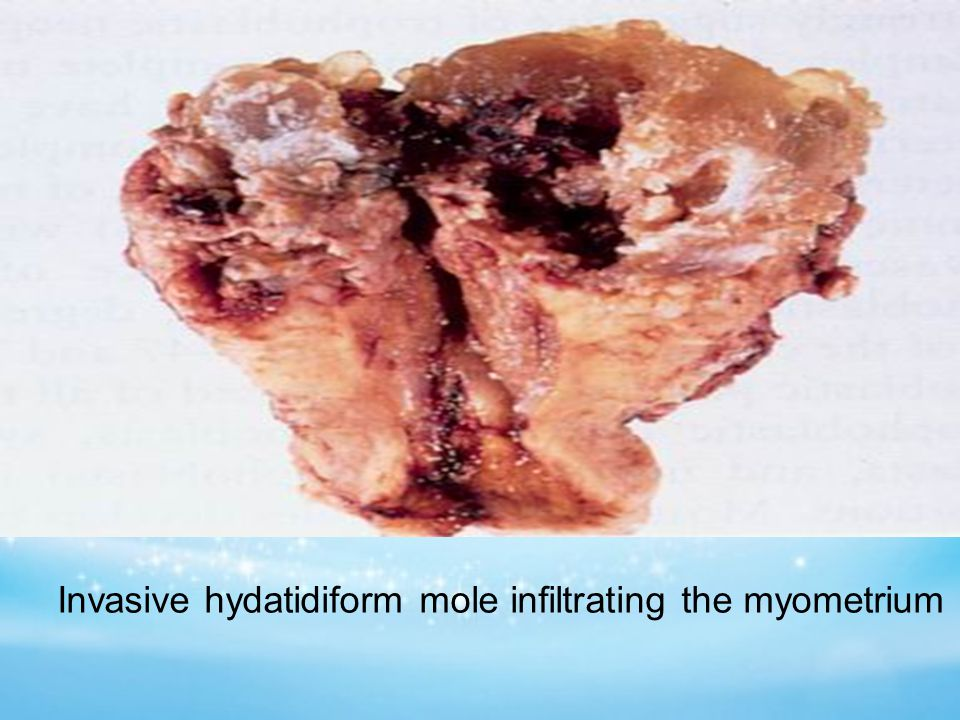 Invasive hydatidiform mole infiltrating the myometrium