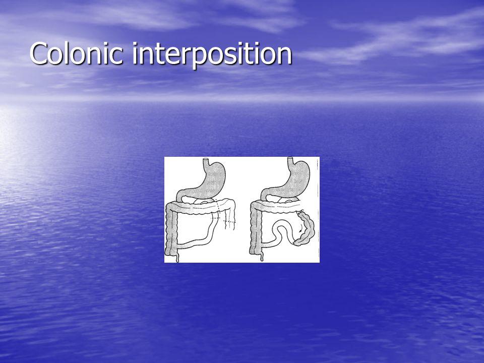 Colonic interposition