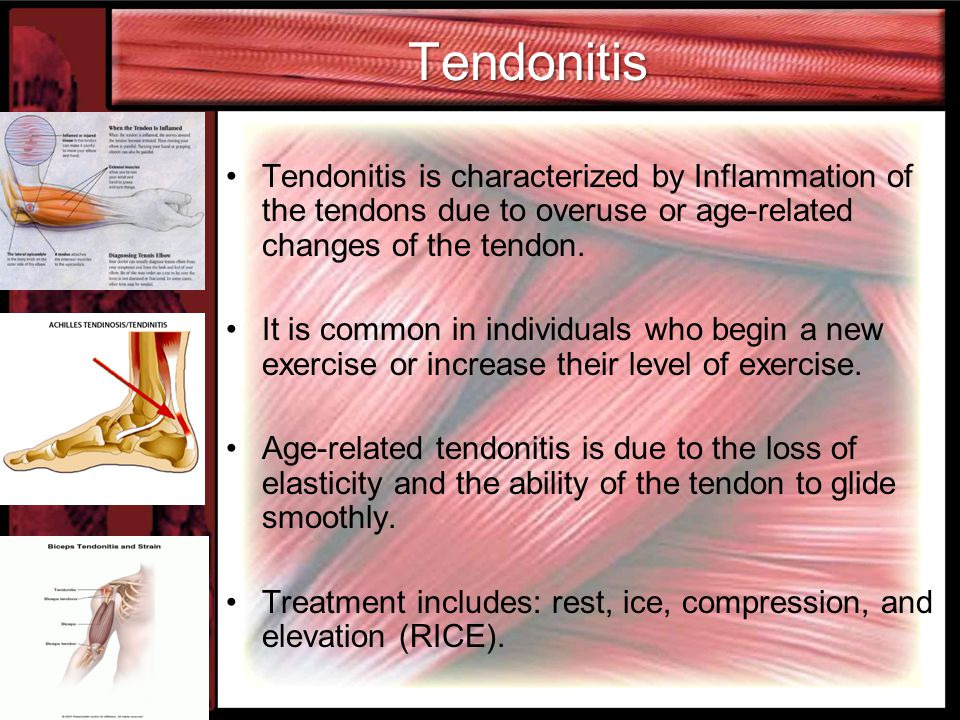 Tendonitis Tendonitis is characterized by Inflammation of the tendons due to overuse or age-related changes of the tendon.