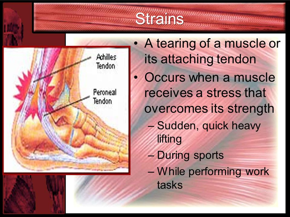 Strains A tearing of a muscle or its attaching tendon Occurs when a muscle receives a stress that overcomes its strength –Sudden, quick heavy lifting –During sports –While performing work tasks