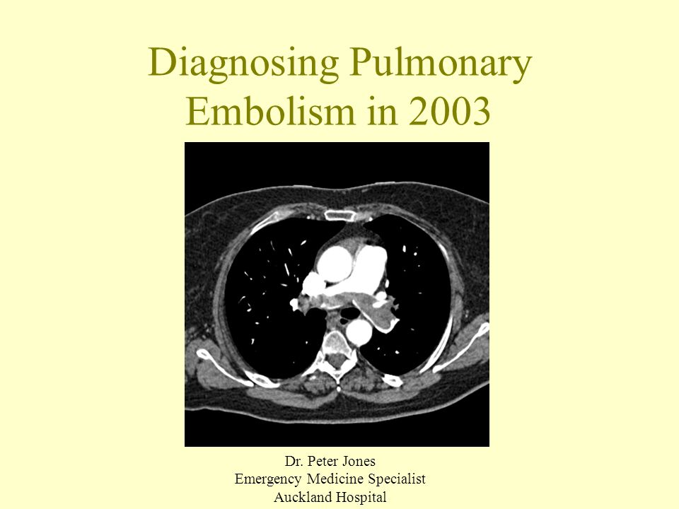 Case 1 43f 5 days post LUSCS Sudden onset pleuritic R chest pain HR 104 WCC 13, D-Dimer 500-4000 3/7 later CxR blunting R CP angle CTPA negative Diagnosis: pleurisy Subsequently well
