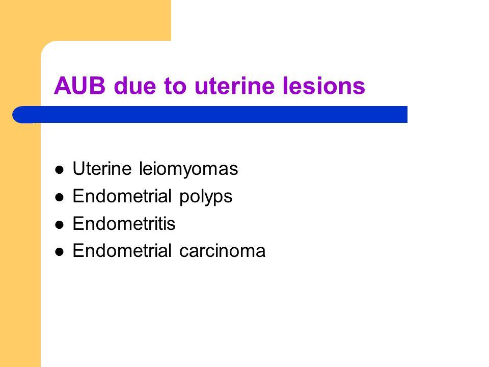 AUB due to uterine lesions Uterine leiomyomas Endometrial polyps Endometritis Endometrial carcinoma
