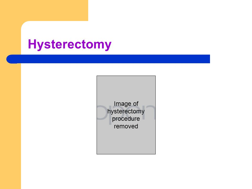 Hysterectomy Image of hysterectomy procedure removed