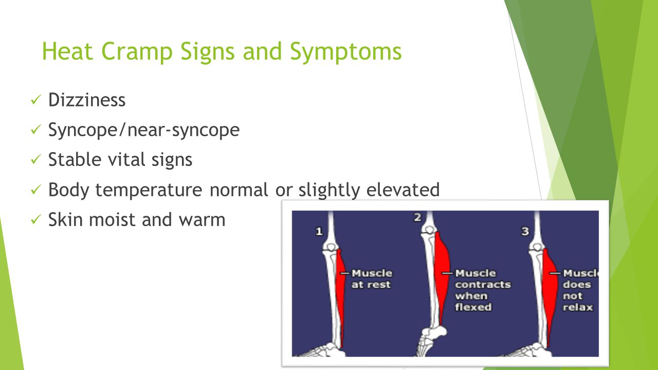 Heat Cramp Signs and Symptoms Dizziness Syncope/near-syncope Stable vital signs Body temperature normal or slightly elevated Skin moist and warm 20
