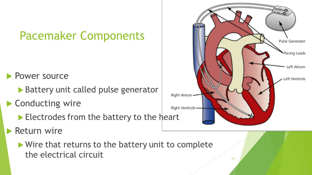 Pacemaker Components  Power source  Battery unit called pulse generator  Conducting wire  Electrodes from the battery to the heart  Return wire 
