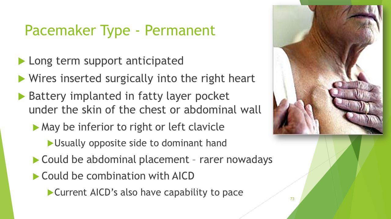 Pacemaker Type - Permanent  Long term support anticipated  Wires inserted surgically into the right heart  Battery implanted in fatty layer pocket