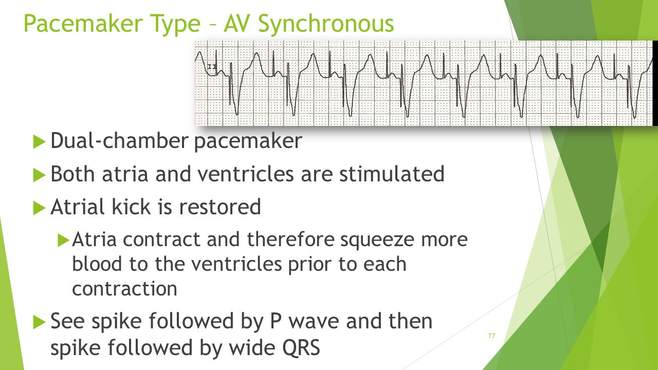 Pacemaker Type – AV Synchronous  Dual-chamber pacemaker  Both atria and ventricles are stimulated  Atrial kick is restored  Atria contract and the